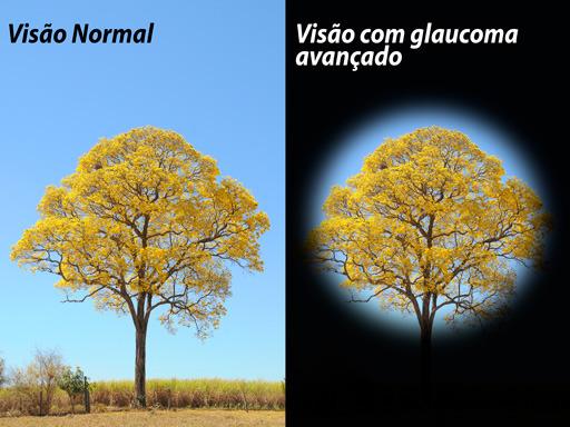 20180525_ipe_amarelo_glaucoma